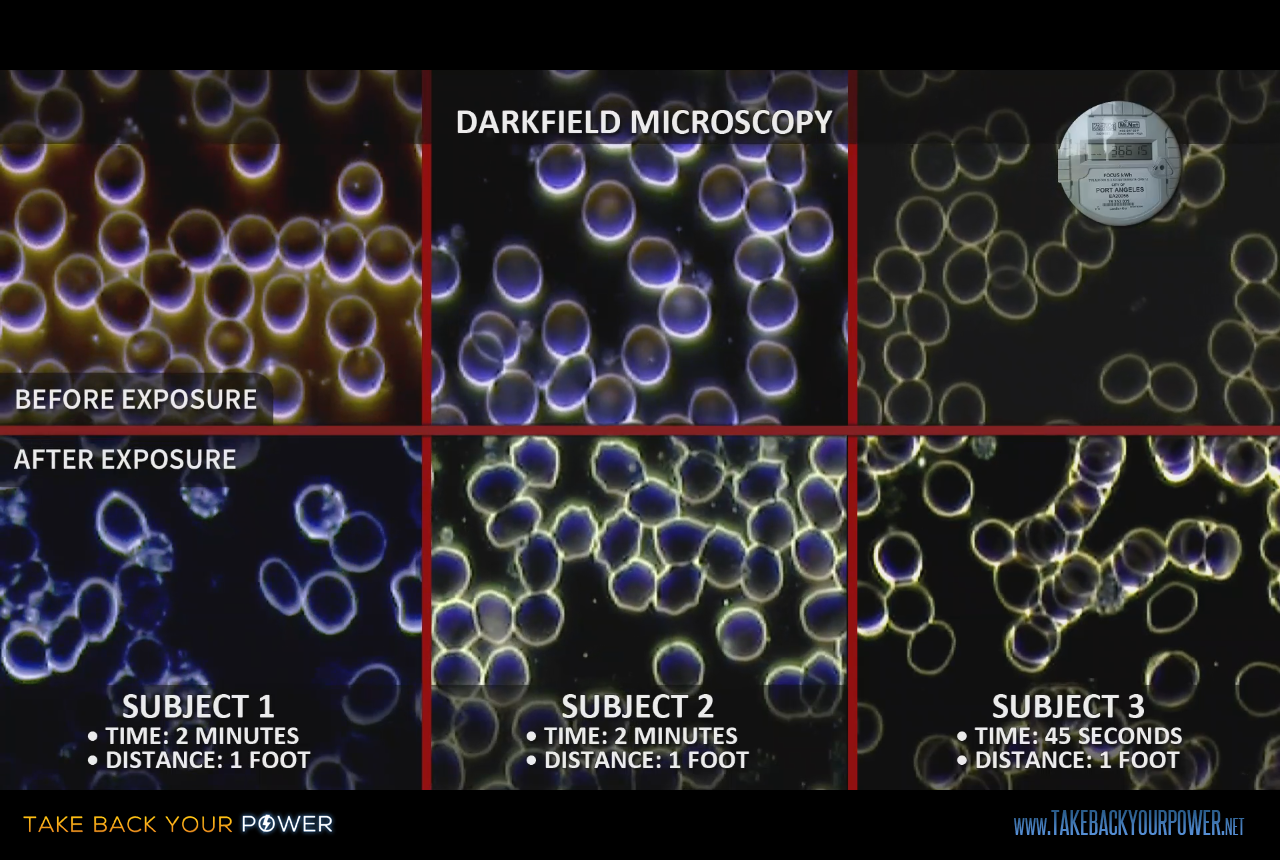 Live blood microscopy: before & after smart meter exposure (scene from Take Back Your Power)